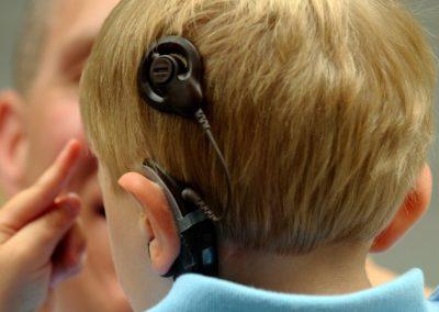 Shpresë për fëmijët me probleme dëgjimi, TFL fiton betejën për Implantin Koklear